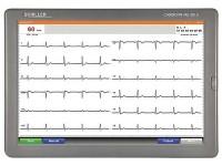 Электрокардиограф CARDIOVIT MS-2015